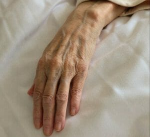 persons left hand on white textile